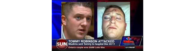 Tommy Robinson beaten unconscious